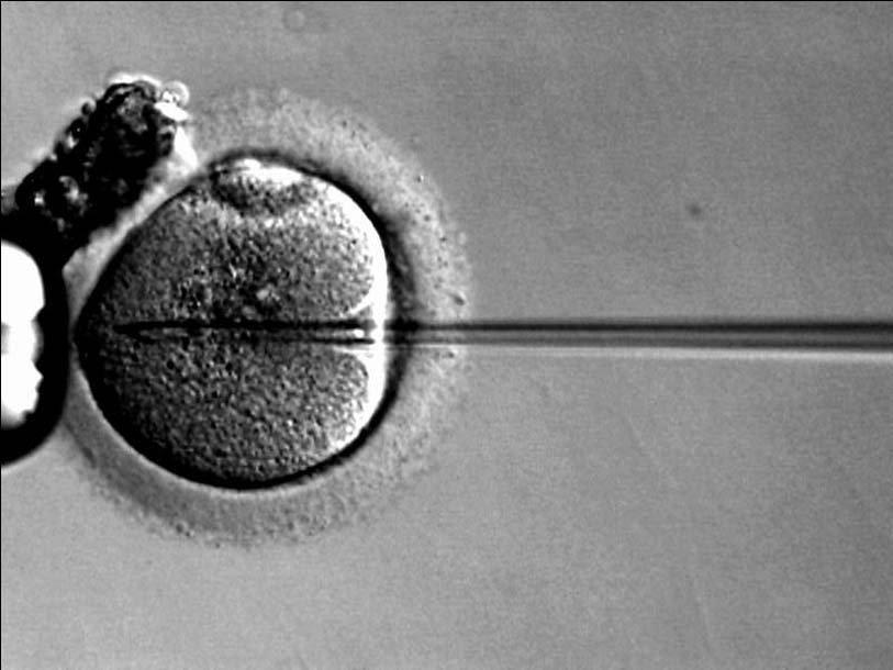 intratsitoplazmaticheskoe-vvedenie-spermatozoida-opredelenie-pola