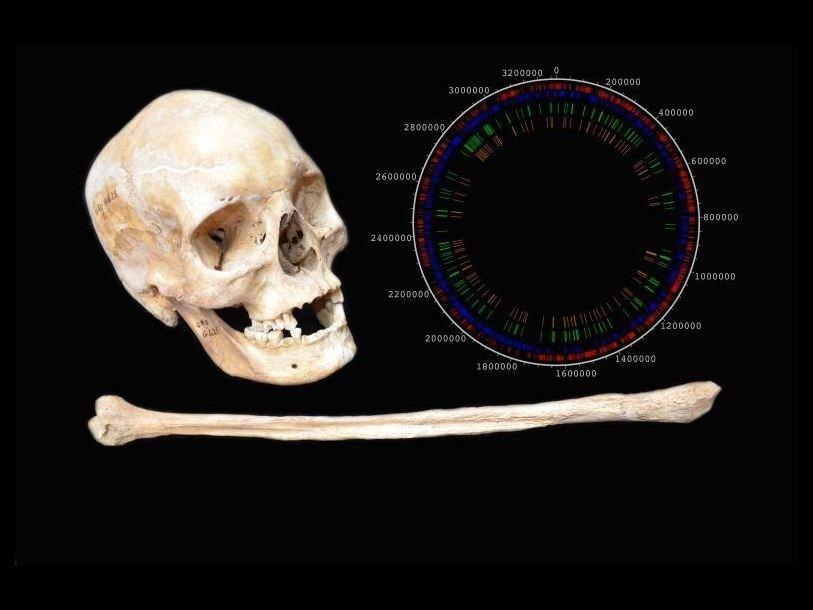Кости одного из древнейших больных проказой