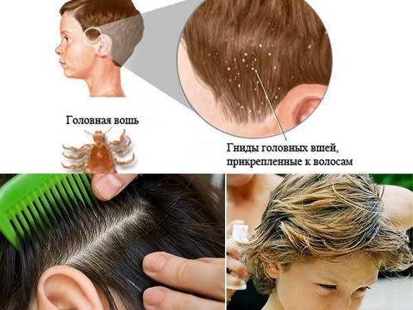Регулярно проверяйте голову своего ребенка и членов своей семьи
