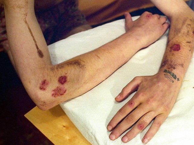 Минздрав предложил снять запрет на заезд вРФ ВИЧ-инфицированных лиц
