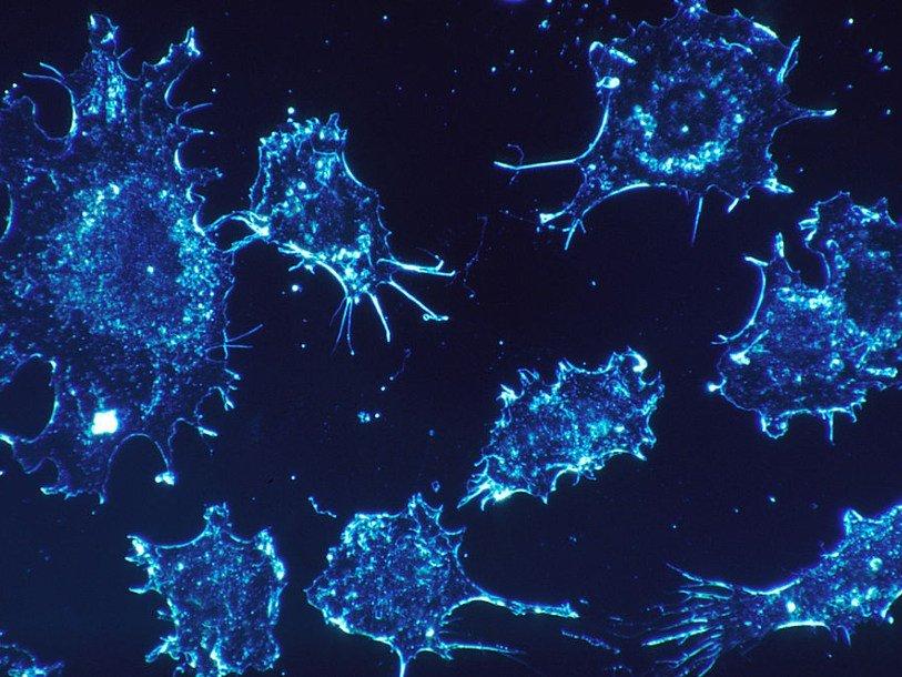 Врачи предложили принципиально новую стратегию борьбы с раком