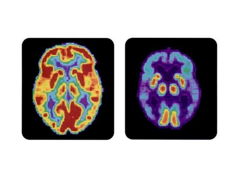 Ученые протестировали новое многообещающее лекарство отболезни Альцгеймера