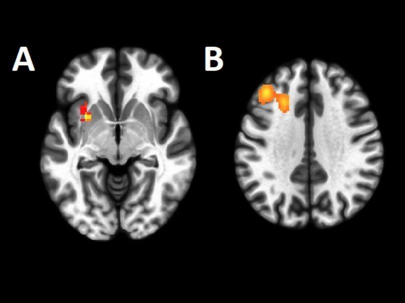 Секс в томографе участки мозга