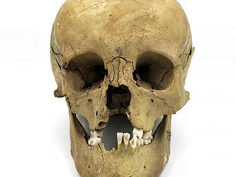 В древности люди с врожденными болезнями становились объектом почитания
